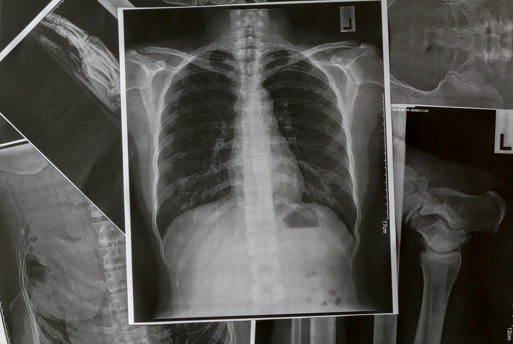 X-ray for radiology transcription